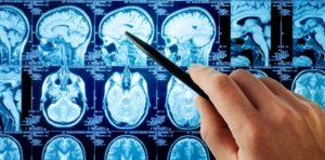 analise do cérebro
