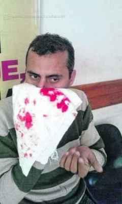 Professor foi agredido dentro da Escola Estadual