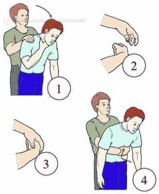 Passo a passo para realizar a Manobra de Heimlich, técnica usada em caso de asfixia