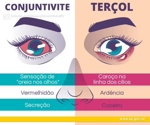 As doenças oculares acima estão entre as mais comuns